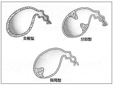腺 筋腫 症 胆嚢